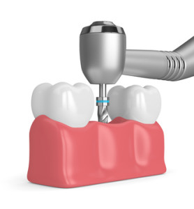 3d render of teeth with dental drill. Dental implant concept